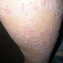 牛皮癣的常见病因有哪些