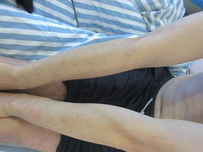 我皮肤上出现了牛皮癣,这个是什么原因