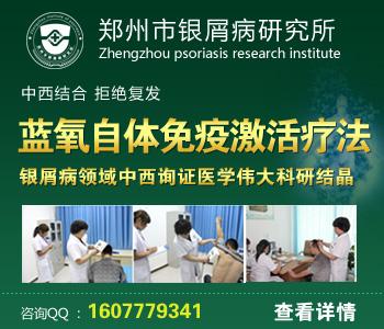 郑州治牛皮癣专科医院