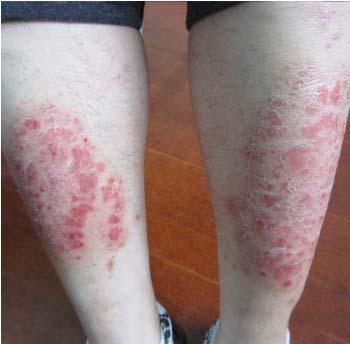 银屑病和湿疹的区别