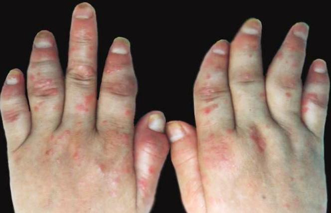 关节型牛皮癣如何诊断