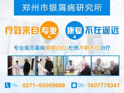 郑州银屑病最好的医院