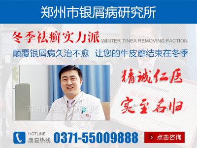 郑州市银屑病研究所口碑