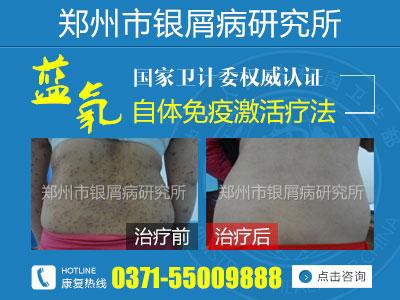 郑州市银屑病研究所好吗