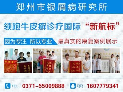 郑州市哪家医院治疗牛皮癣最好