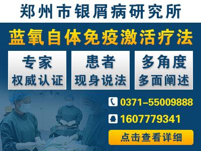 郑州哪家医院治疗牛皮癣比较好
