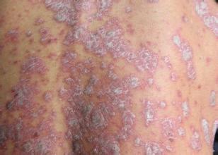 牛皮癣疾病的患病类型有哪些