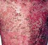 得了牛皮癣疾病会有什么表现