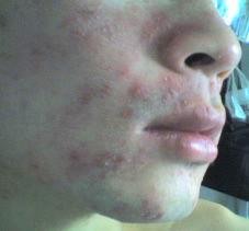有红色丘疹是牛皮癣吗