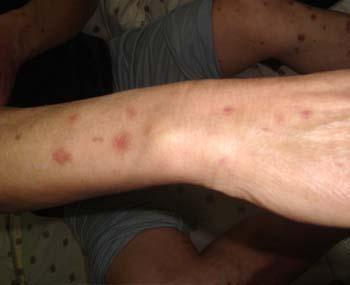 手臂银屑病保健方法是什么