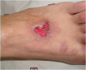 脚部寻常型银屑病症状是什么