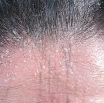 头部银屑病危害是什么