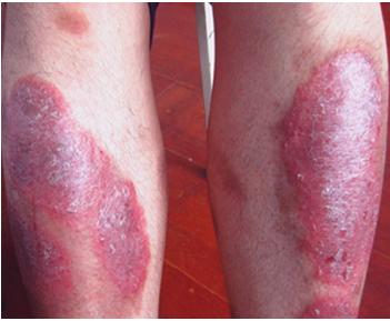 红皮型牛皮癣治疗方法有哪些