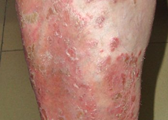 脓疱型牛皮癣症状是什么