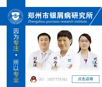 信阳牛皮癣专科医院
